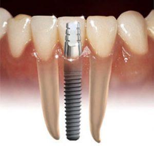 Harga-Biaya-Implant Gigi
