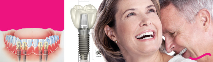 Klinik-Dental-Implant-di-Jakarta